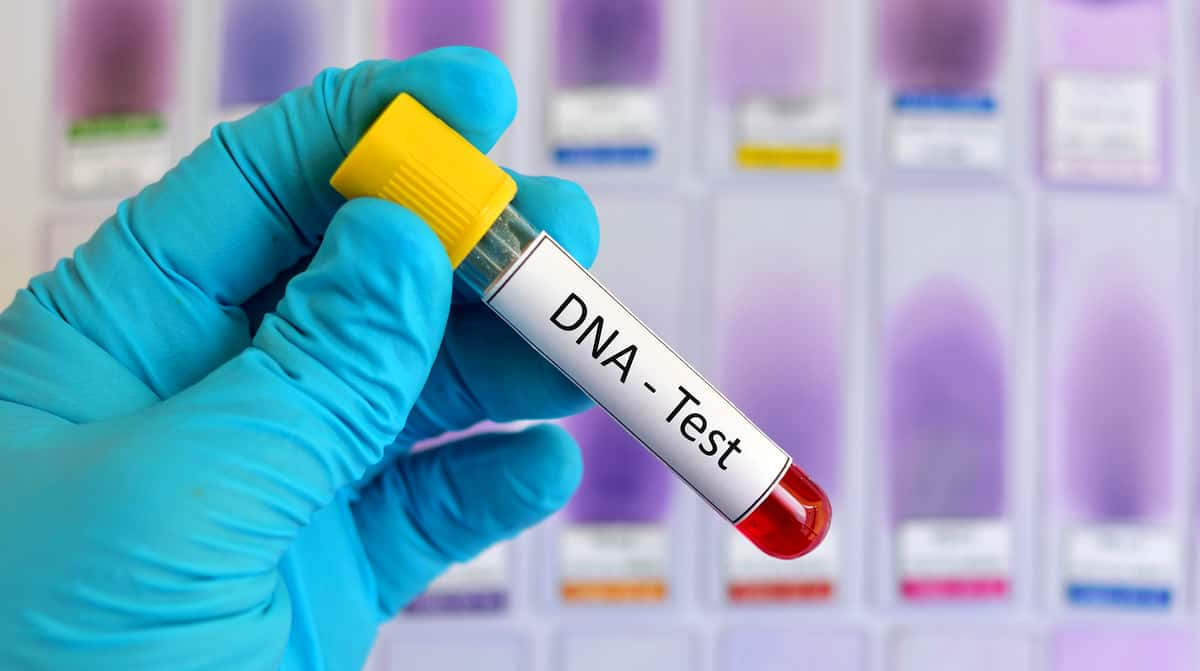DNA Testing for Health Risks