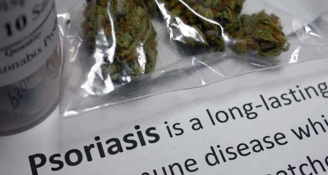Can Cannabis Cure Psoriasis