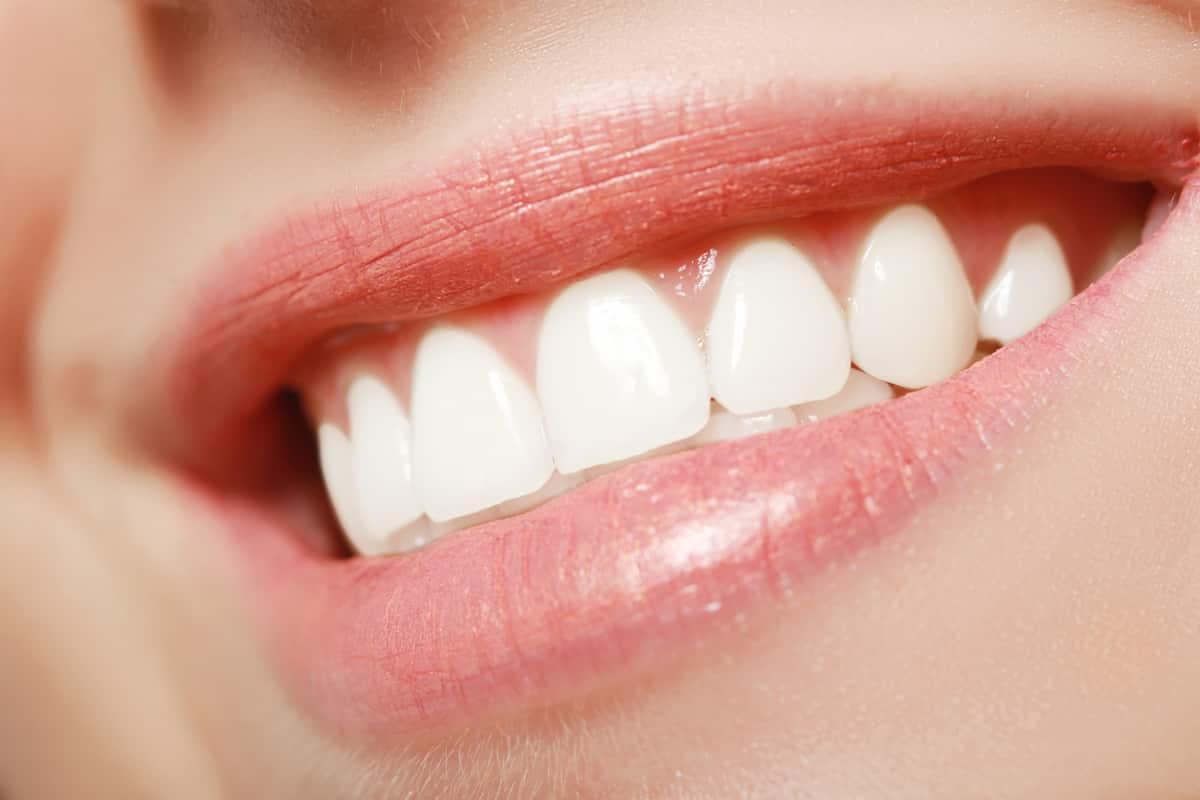 perfectly straight teeth