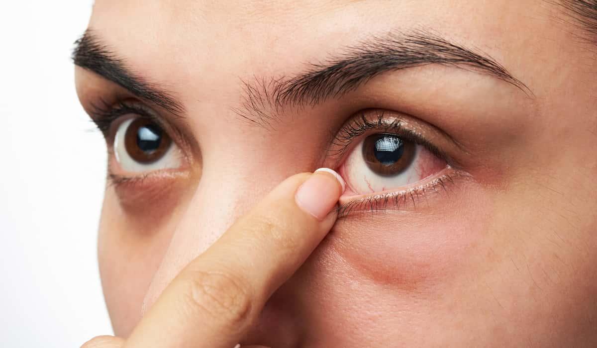 causes dry eyes