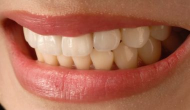 7 Reasons Why The Cost Of Porcelain Veneers Is Worth Every Penny