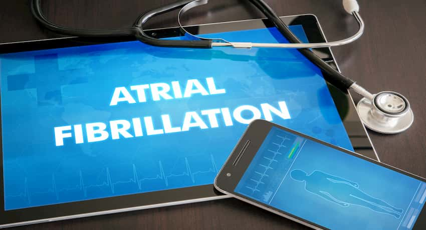 what can trigger atrial fibrillation