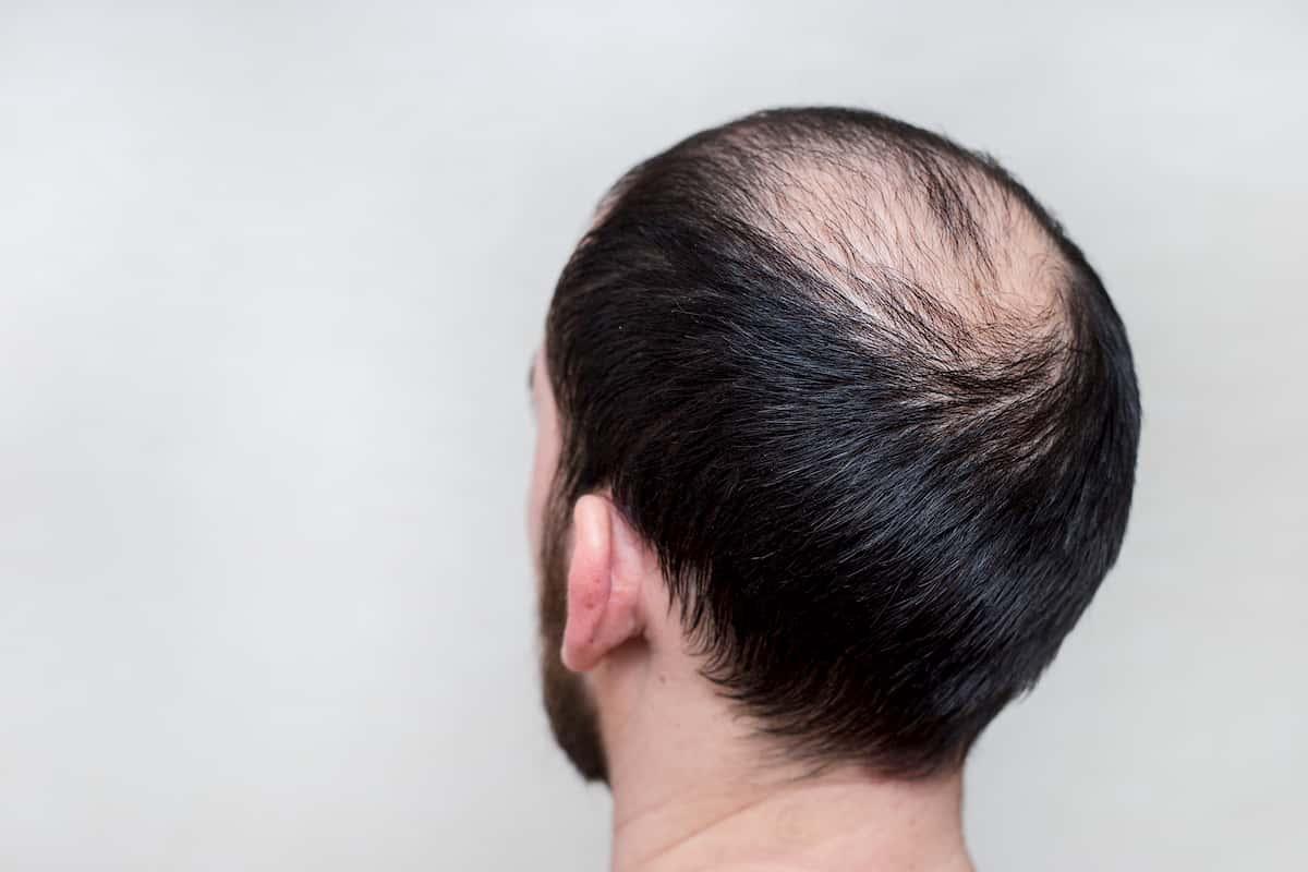 scalp pigmentation
