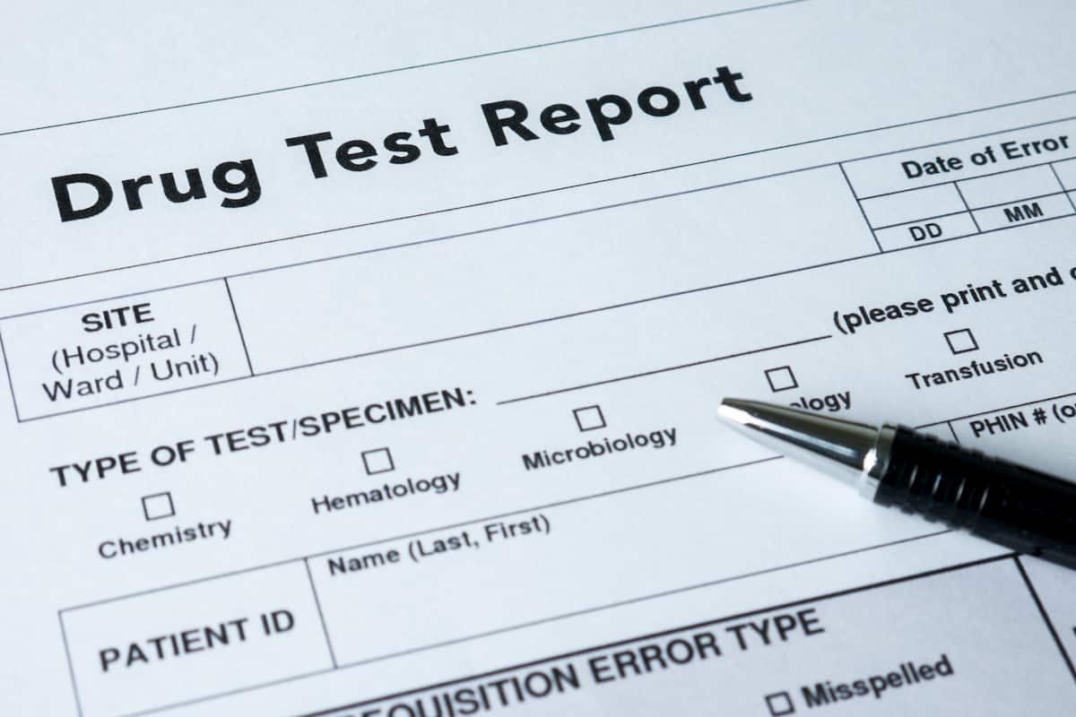 will cbd show on drug test