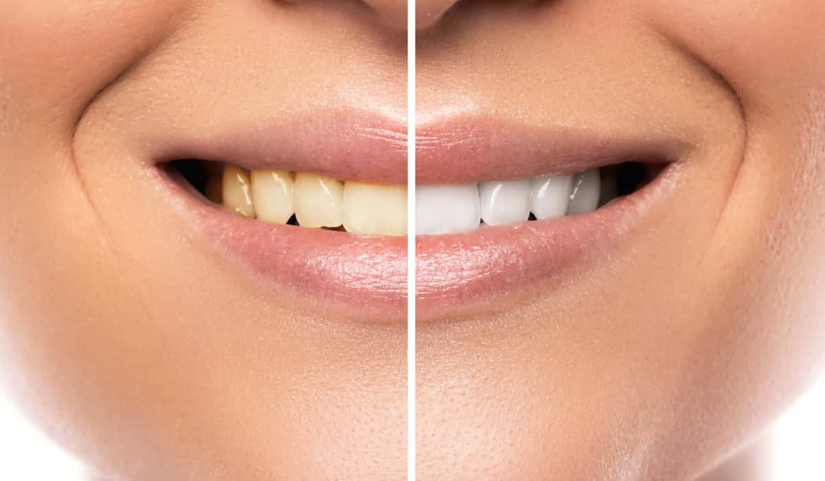 causes of tooth discoloration